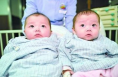渭南一对双胞胎男婴疑因耳部畸形被遗弃