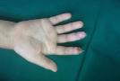 9岁小孩手指断了急就医 粗心家长却忘了最重要的东西