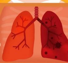 为何病毒易攻击肺脏? 流感新冠肺炎咋区分?